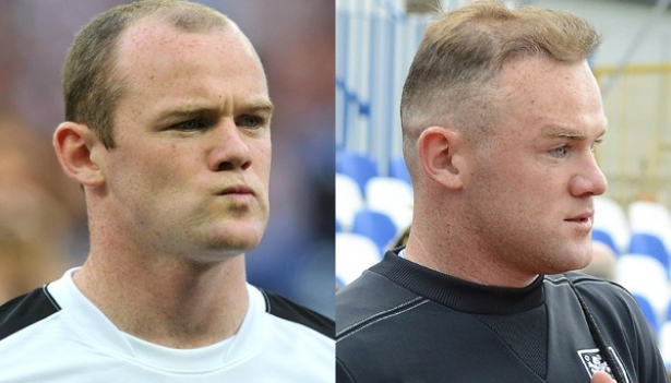 Rooney antes y después de su implante capilar.