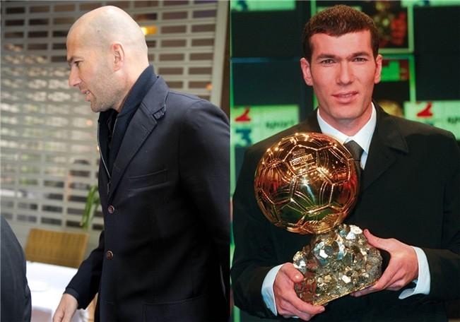 Zidane ha perdido el pelo que tenía.