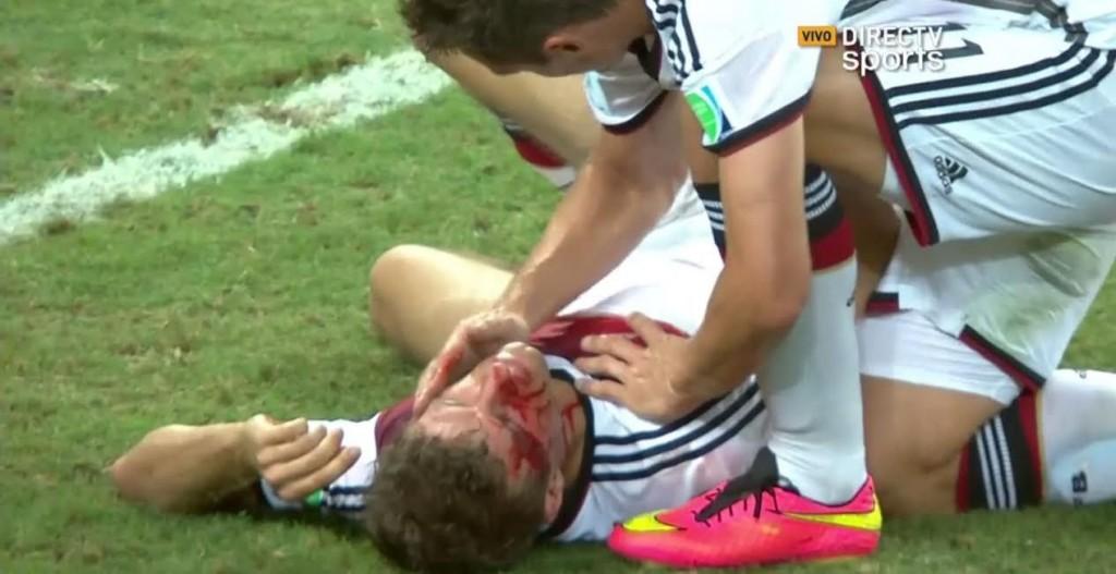 Müller quedó lesionado en la última jugada del partido.