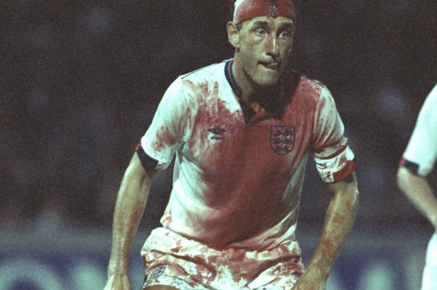 Juice and practically the whole game Terry Butcher 1989.