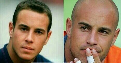 Even if it looks like a lie, Pepe Reina had hair.