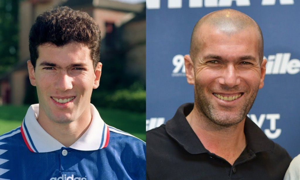 Zidane when wearing his bushy hair and his well-known look.